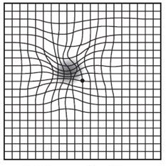 AMD Amsler Grid illustration of what it looks like if you have Macular Degeneration