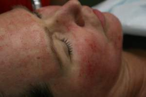 close up of woman receiving Microneedling Treatment
