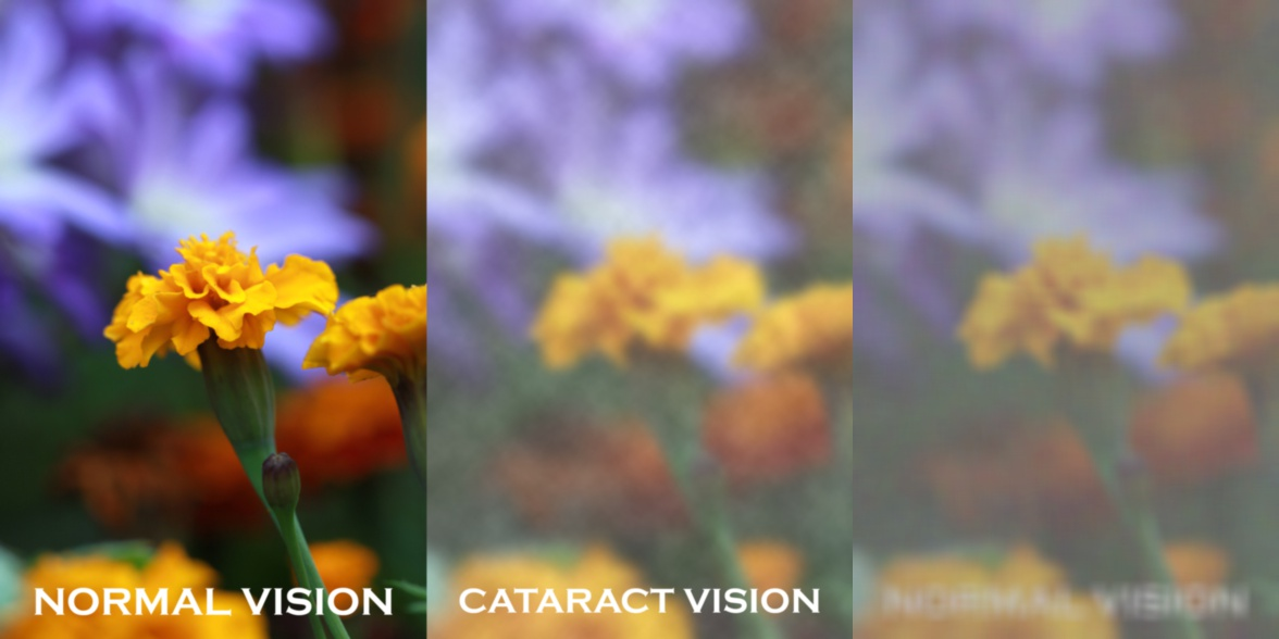 cataract simulation flowers in 3 stages of blurred vision